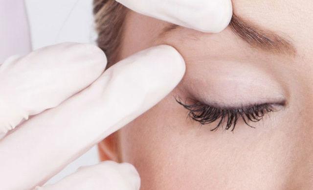 I trucchi della medicina estetica per far rifiorire lo sguardo