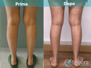 liposuzione-gambe-prima-dopo