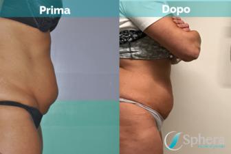 liposuzione-pancia-roma-prima-dopo