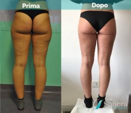 liposuzione-prima-dopo