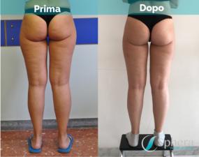 liposuzione-roma-prima-dopo