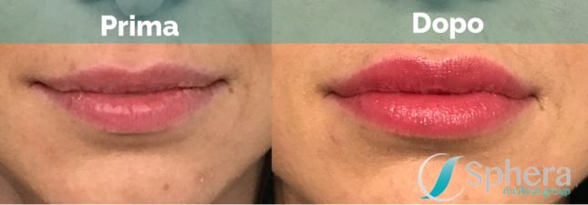 rimodellamento-labbra-prima-dopo