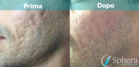 rimozione-acne-roma-prima-dopo