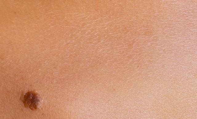 Nei: quando diventano pericolosi e come prevenire il melanoma