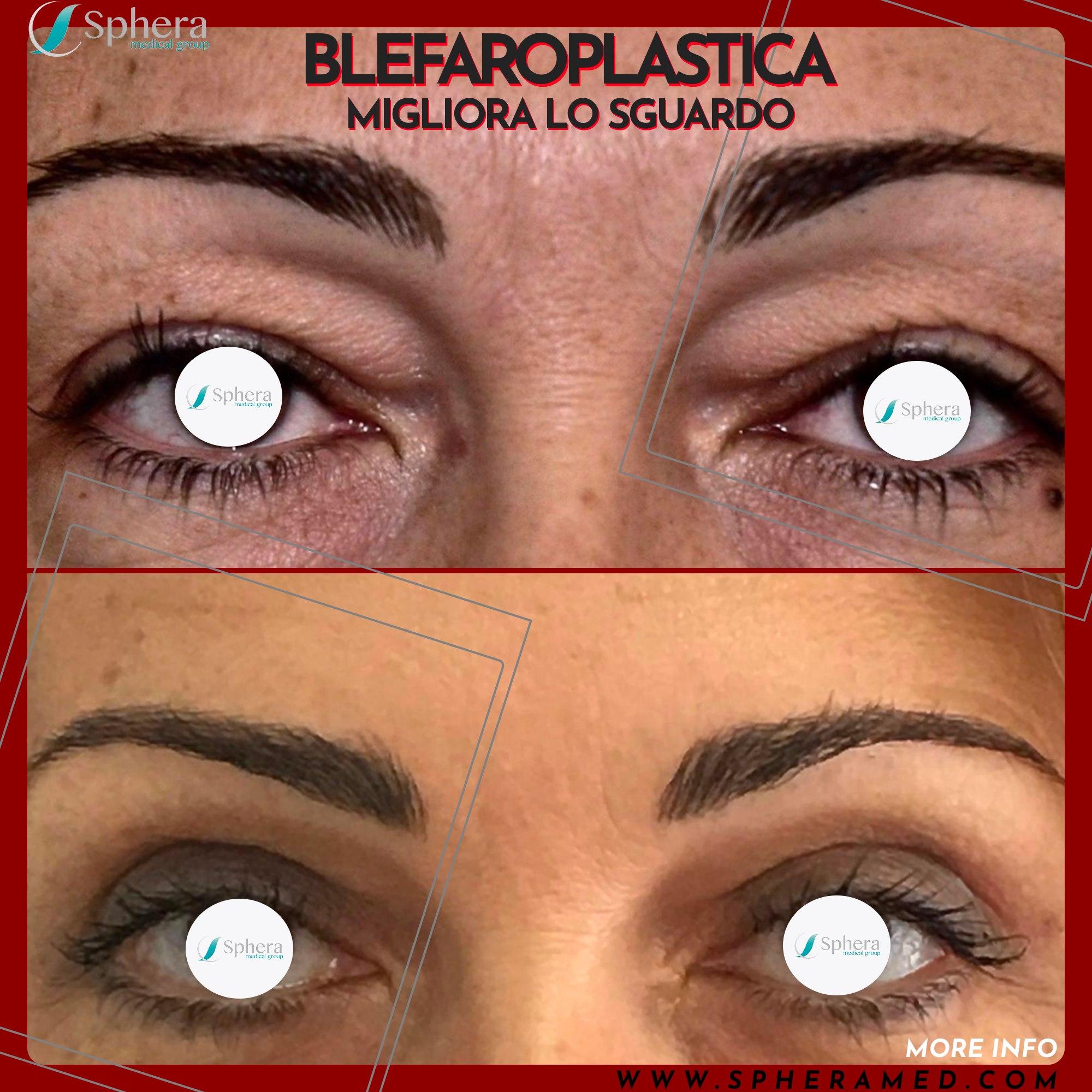 blefaroplastica superiore