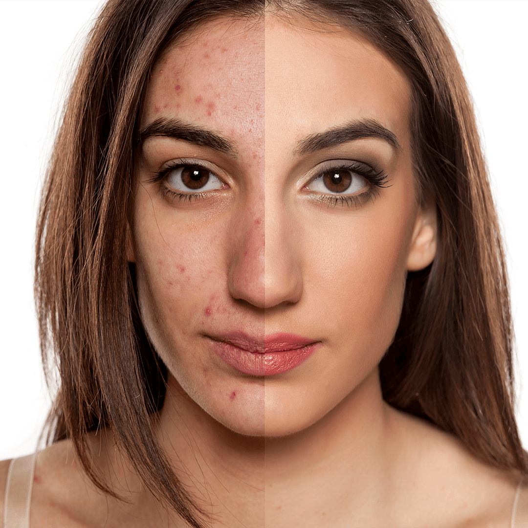 Inestetismi dell'acne